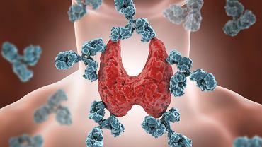 Zaniedbane Hashimoto może być przyczyną problemów z płodnością. Dolegliwości wiążące się z chorobą można złagodzić, a leczeniem powstrzymać wystąpienie powikłań.