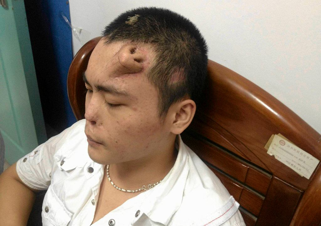 Pan Xiaolian z wyhodowanym na czole nosem
