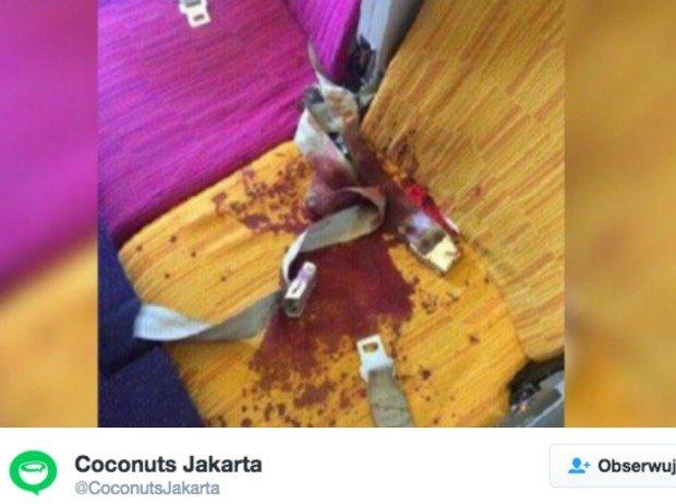 Plama na siedzeniu pasażera, który uderzył głową w sufit