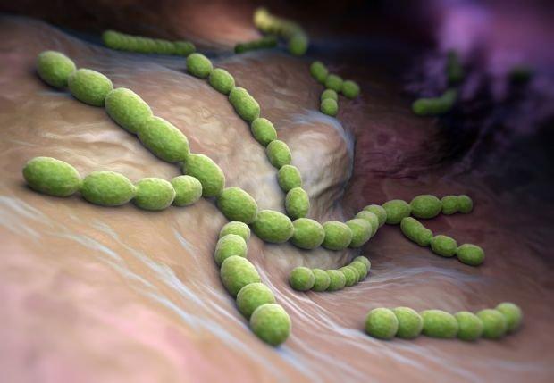 ASO, czyli odczyn antystreptolizynowy badane jest w przypadku podejrzenia zakażenia paciorkowcem