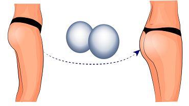 Powiększanie pośladków to zabieg, na który decyduje się coraz więcej kobiet, które chcą mieć jędrne i uniesione pośladki - zabieg można wykonać m.in. przy użyciu implantów