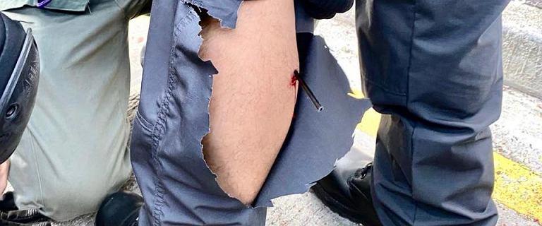 Protesty w Hongkongu. Policjant raniony strzałą w łydkę