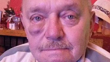 Guz pod lewym okiem pana Michała zmniejsza się po leku, który stracił refundację