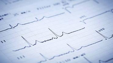 Elektromiografia pozwala ocenić stan mięśni oraz obwodowego układu nerwowego