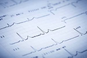EMG: Elektromiografia