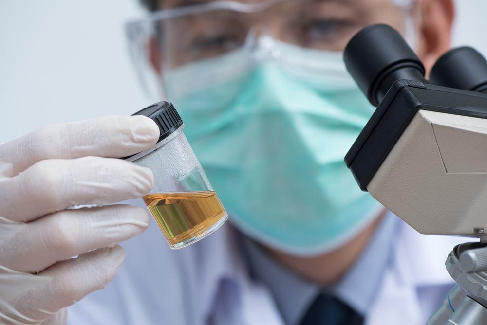 Erytrocyty w moczu może wykazać proste badanie ogólne moczu, wykonywane tak profilaktycznie, jak i ze wskazań medycznych, na podstawie obserwacji objawów czy w celu monitorowanie leczenia urazów i zakażeń.