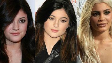 W ostatnim wywiadzie 19-letnia Kylie Jenner zdradziła, że powiększyła usta, bo czuła się na tyle nieatrakcyjna, że myślała, że nigdy nie znajdzie się chłopak, który będzie chciał ją pocałować. Ale nie tylko jej twarz uległa ogromnej metamorfozie. Zobaczcie jak zmieniały się gwiazdy na przestrzeni lat!