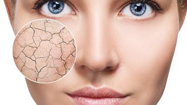 Skóra sucha jest jedną z trudniejszych w pielęgnacji typów skóry. Łatwo ulega podrażnieniom, często się łuszczy, jest też mniej odporna na działanie czynników atmosferycznych, jak wiatr czy mróz