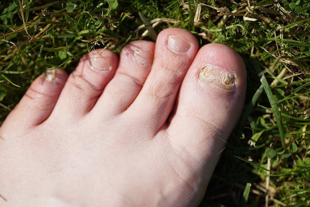 Grzybica paznokci może zaatakować zarówno dłonie, jak i stopy, jednakże znacznie częściej problem tek dotyka paznokcie u nóg