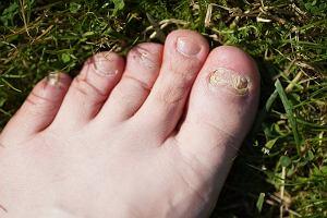 Grzybica paznokci. Jakie są objawy grzybicy paznokci? Jak leczyć to schorzenie?