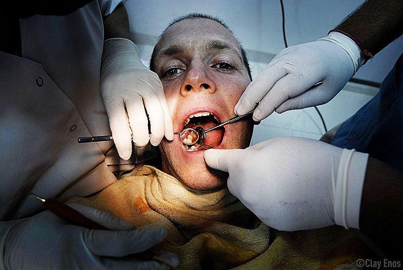 Gdy ząb zaczyna boleć, to sygnał, że jest już naprawdę źle.