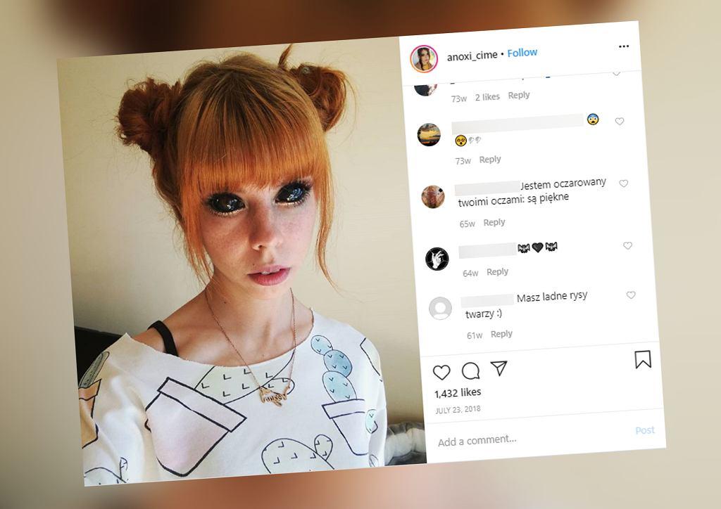 Aleksandra Sadowska chciała mieć czarne gałki oczne. Źle wykonany tatuaż sprawił, że straciła wzrok