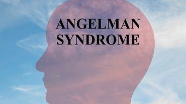 Zespół Angelmana jest to choroba genetyczna, polegająca na nieprawidłowym funkcjonowaniu układu nerwowego. Nazywana jest często chorobą szczęśliwej marionetki.