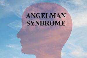 Zespół Angelmana: przyczyny, objawy, sposoby leczenia