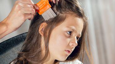 Pasożyty u dzieci. Objawy wszawicy to przede wszystkim świąd skóry głowy.