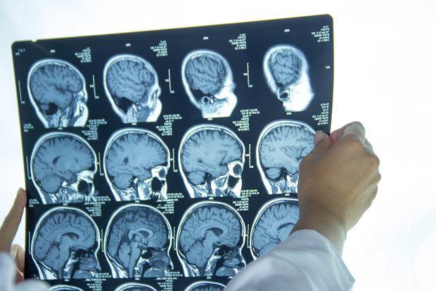 Udar mózgu: przyczyny, objawy, leczenie