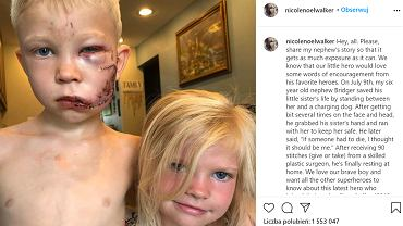 6-latek osłonił siostrę przed atakiem psa. 'Pomyślałem, że jeśli ktoś ma umrzeć, to powinienem być to ja'