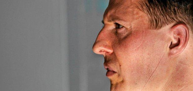 F1. Specjalista od urazów mózgu: Jeśli Schumacher przeżyje, nie będzie już Schumacherem