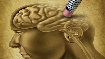 Lek na Alzheimera? Naukowcy robią postępy