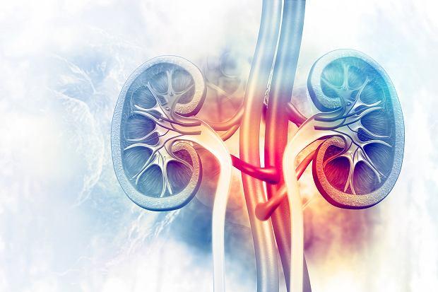 Nefropatia IgA (choroba Bergera): przyczyny, objawy, leczenie