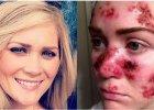 Bezpieczne opalanie nie istnieje! Czym może grozić niewłaściwa ochrona skóry przed słońcem?
