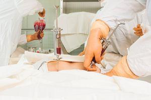 Pierwotne włóknienie szpiku: przyczyny, objawy, leczenie