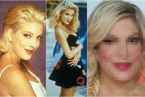 Od 4 października 1990 roku kiedy to wyemitowano pierwszy odcinek Beverly Hills 90210, minęło ponad 25 lat. Nic dziwnego, że Tori Spelling, jedna z głównych aktorek serialowego hitu, zmieniła się. Jednak tu nie tylko czas wpłynął na jej wygląd. Przede wszystkim drastyczne i niezbyt udane zmiany zafundowała sobie sama. Dziś w niczym nie przypomina już Donny Martin, którą grała.
