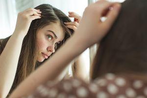 co może powodować wypadanie włosów