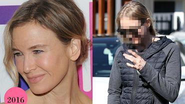 Renee Zellweger w 2016 r. i obecnie
