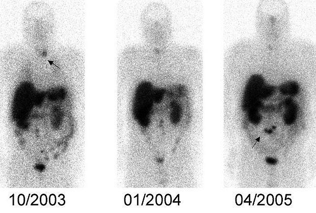 Obraz uzyskany poprzez scyntygrafię receptorową; na zdjęciach widać rozwój guza neuroendokrynnego krezki oraz kumulację izotopu w obszarze tarczycy