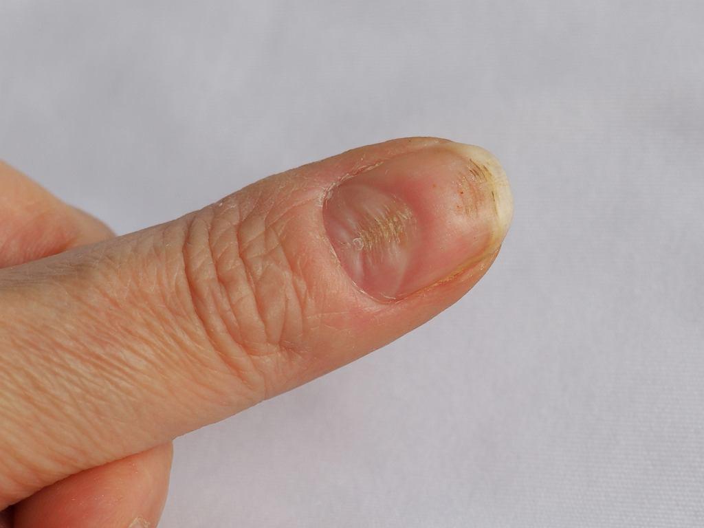 Bruzdy na paznokciach - czego mogą być objawem?