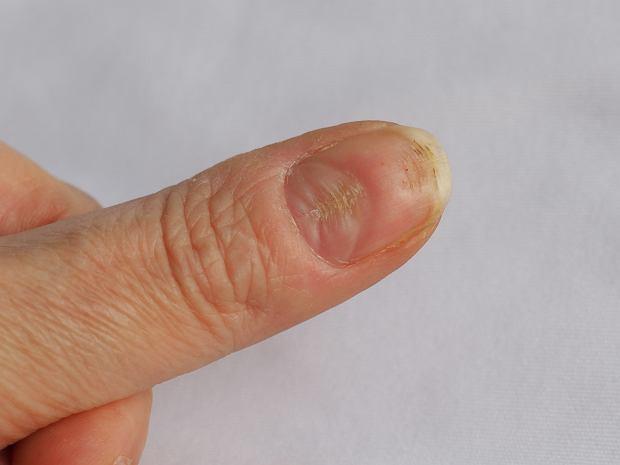 Bruzdy na paznokciach - poznaj najczęstsze przyczyny ich powstawania