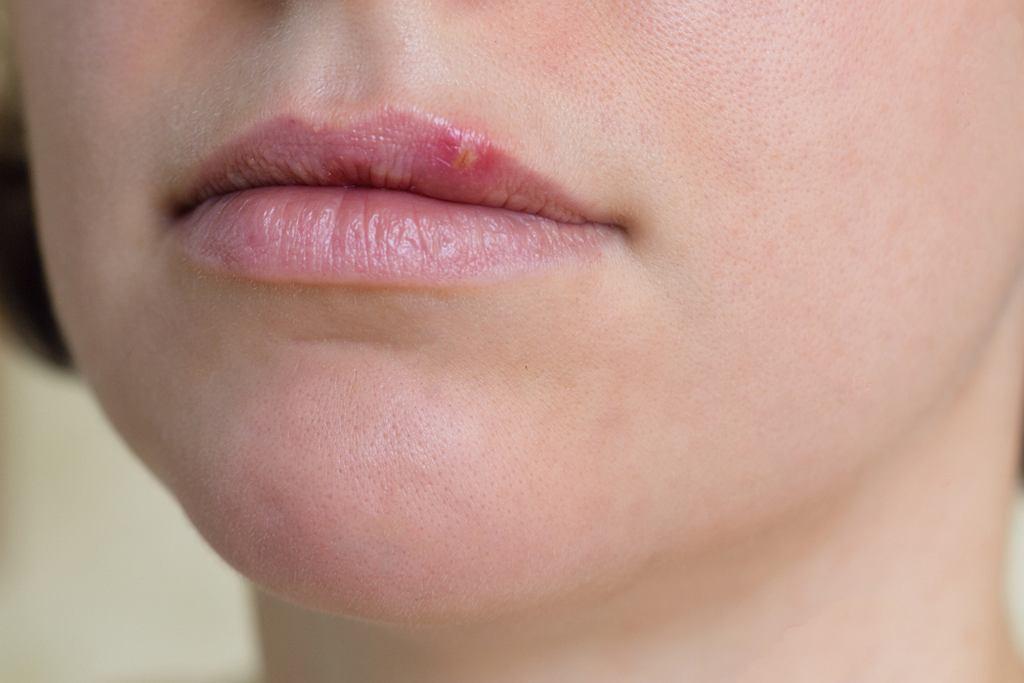 Opryszczka w ciąży, ale i nie tylko wtedy, wywoływana jest przez wirus HSV (ang. Herpes Simplex Virus)