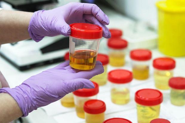 Pojawiła się szansa na szybsze i bezbolesne wykrywanie raka prostaty. To badanie moczu
