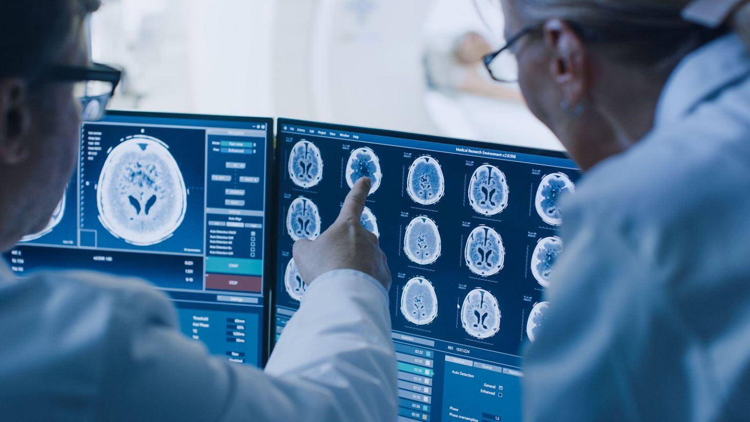 Radiolog  i onkolog podczas skanowania badań mózgu