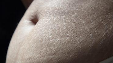 Ciąża niszczy ciało kobiety? Matka trójki dzieci: Teraz jest doskonałe