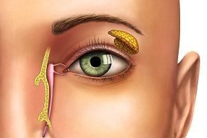 Kanaliki łzowe - jak udrożnić zatkane kanaliki łzowe?