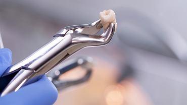 Ekstrakcja zęba