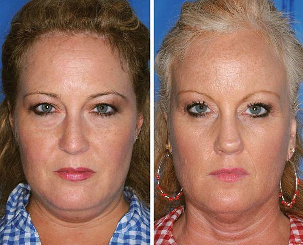 Z tych dwóch kobiet tylko jedna pali papierosy - ta po prawej stronie