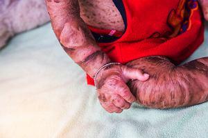 Płód arlekina: czym jest? Objawy, przyczyny, leczenie