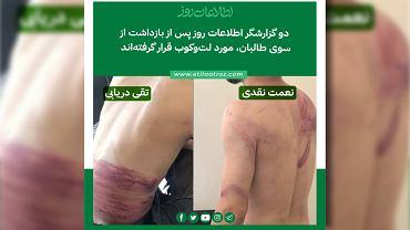 Zdjęcie obrażeń torturowanych dziennikarzy