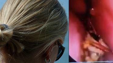 Karaluch w czaszce kobiety spędził 12 godzin