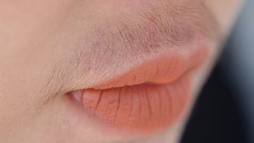 Hirsutyzm to występowanie nadmiernego owłosienia u kobiet. Owłosienie charakterystyczne dla hirsutyzmu nazywa się je owłosieniem typu męskiego.