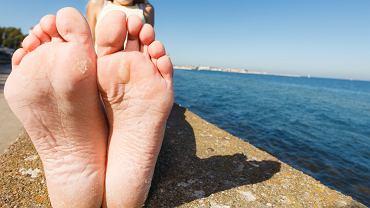 Modzele pełnia rolę  'naturalnych butów'. Zdaniem specjalistów nie warto ich usuwać