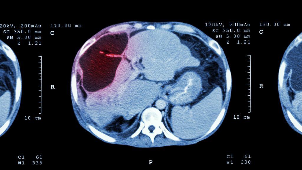 Rak wątroby, obraz CT.