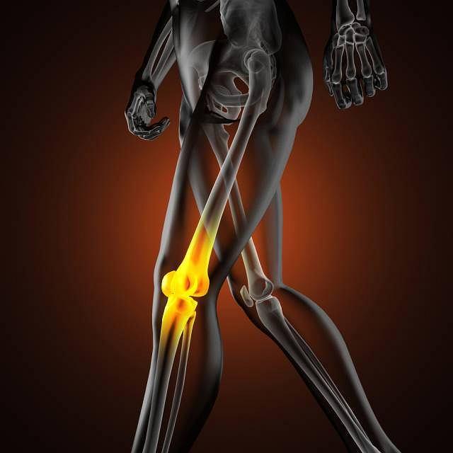 Typowe dla choroby zmiany w obrębie kości udowej najczęściej pojawiają się u chłopców między 10 a 16 rokiem życia