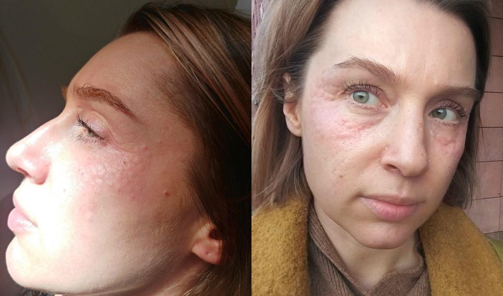 Od lewej: efekt od razu po zabiegu, opuchlizna po godzinie.