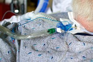 Stwardnienie zanikowe boczne - przyczyny, objawy, leczenie