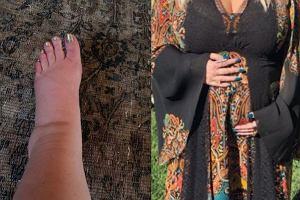 Jessica Simpson pokazała zdjęcie opuchniętej stopy