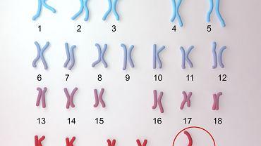 Zespół Turnera jest spowodowany brakiem lub niewłaściwym rozwojem chromosomu X.